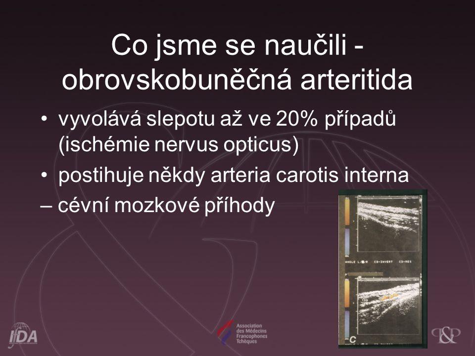 Co jsme se naučili - obrovskobuněčná arteritida vyvolává slepotu až ve 20% případů (ischémie nervus opticus) postihuje někdy arteria carotis interna –