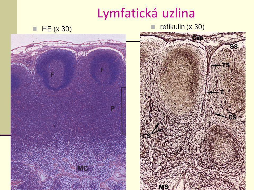 Lymfatická uzlina HE (x 30) retikulin (x 30)
