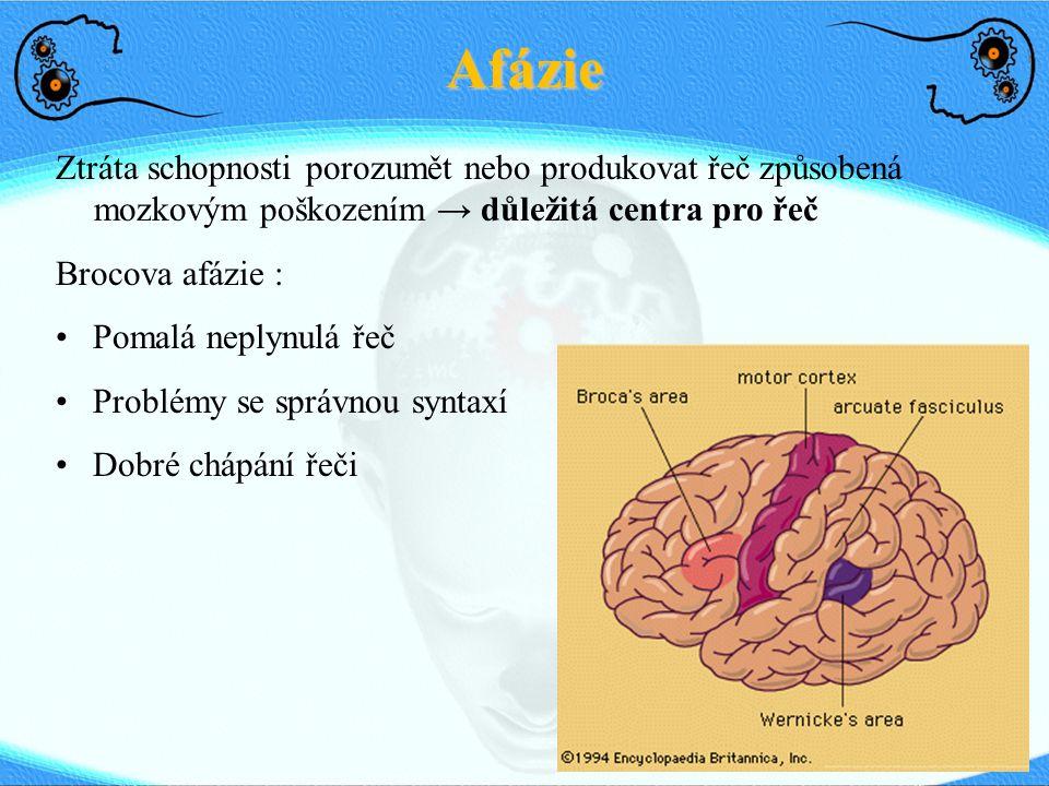 Afázie Ztráta schopnosti porozumět nebo produkovat řeč způsobená mozkovým poškozením → důležitá centra pro řeč Brocova afázie : Pomalá neplynulá řeč P