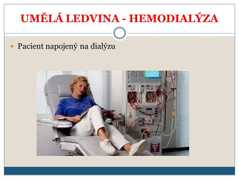 UMĚLÁ LEDVINA - HEMODIALÝZA Pacient napojený na dialýzu