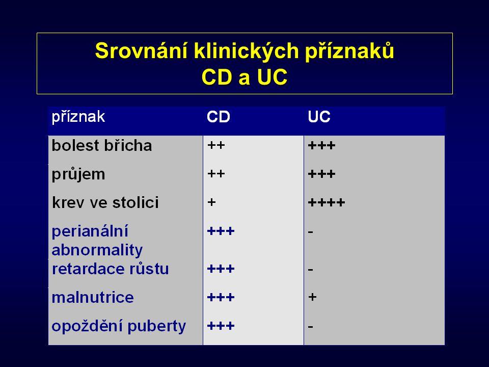 Srovnání klinických příznaků CD a UC