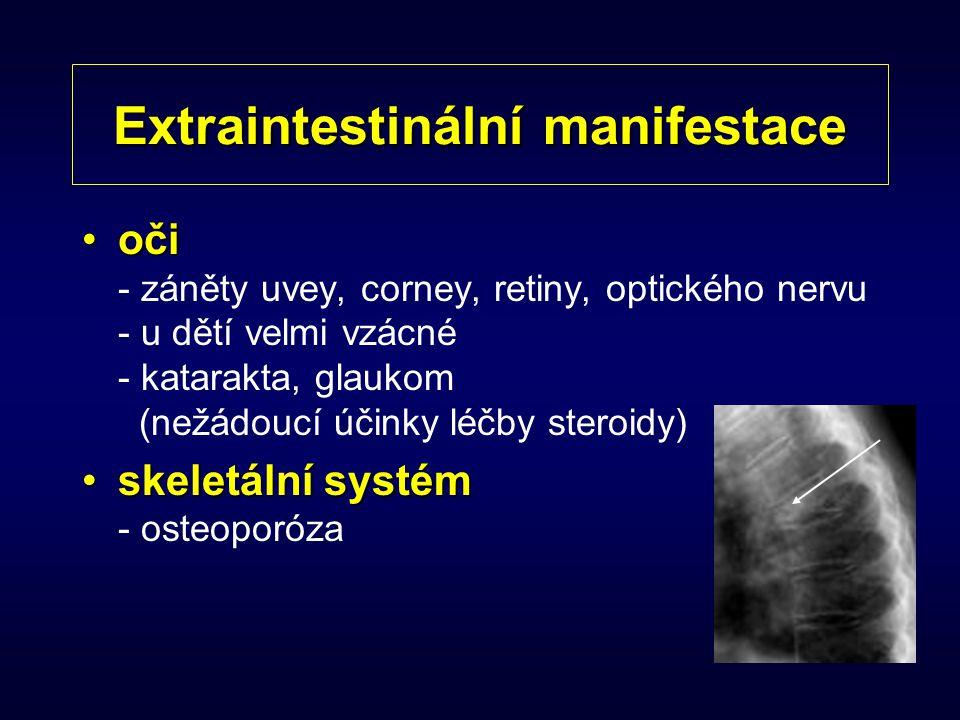 Extraintestinální manifestace očioči - záněty uvey, corney, retiny, optického nervu - u dětí velmi vzácné - katarakta, glaukom (nežádoucí účinky léčby