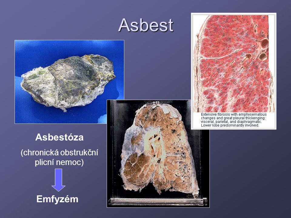 Asbest Asbestóza (chronická obstrukční plicní nemoc) Emfyzém