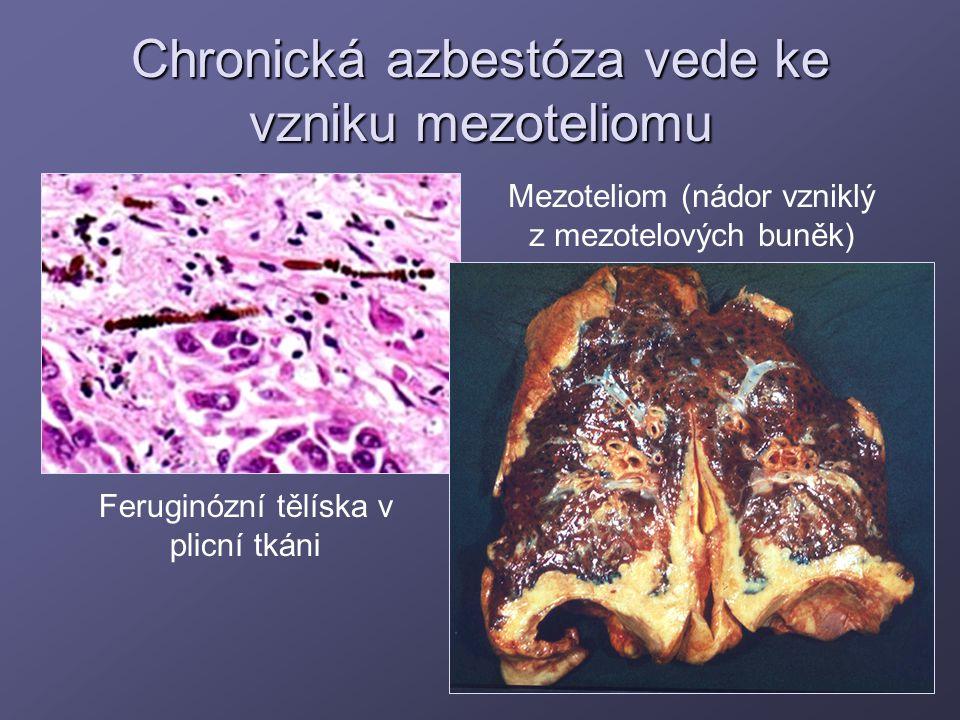 Chronická azbestóza vede ke vzniku mezoteliomu Feruginózní tělíska v plicní tkáni Mezoteliom (nádor vzniklý z mezotelových buněk)