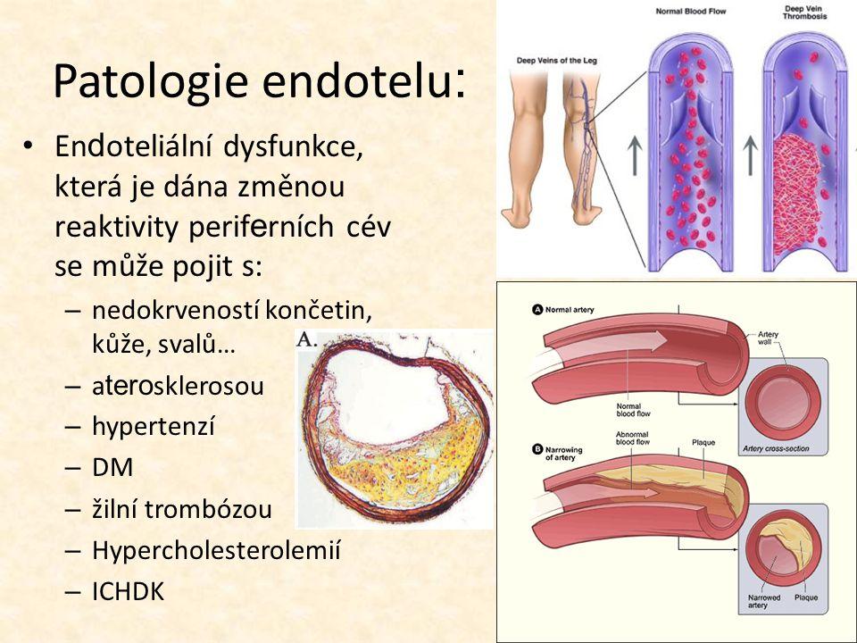 Patologie endotelu : En d oteliální dysfunkce, která je dána změnou reaktivity perif e rních cév se může pojit s: – nedokrveností končetin, kůže, svalů… – a tero sklerosou – hypertenzí – DM – žilní trombózou – Hypercholesterolemií – ICHDK