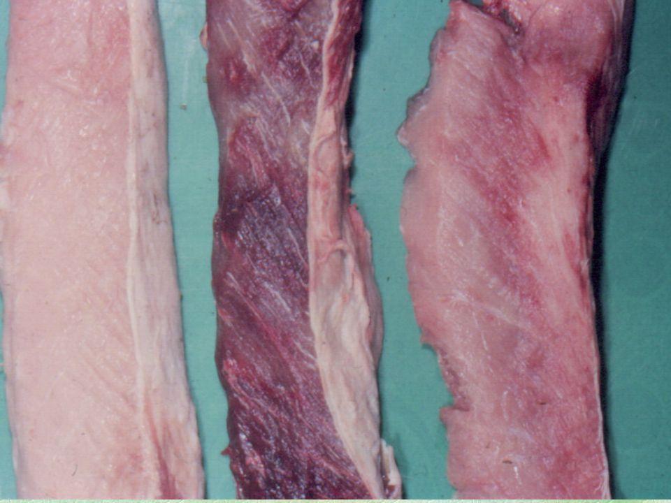 10 Získané dystrofické procesy:  Poruchy metabolismu bílkovin : hyalinní dystrofie amyloidní dystrofie mukoidní dystrofie  Poruchy metabolismu tuků : steatóza  Poruchy metabolismu glycidů  Poruchy pomocných mechanismů metabolismu: poruchy výměny vody a minerál.látek patologická kalcifikace patologická krystalizace tvorba konkrementů  Patologická pigmentace