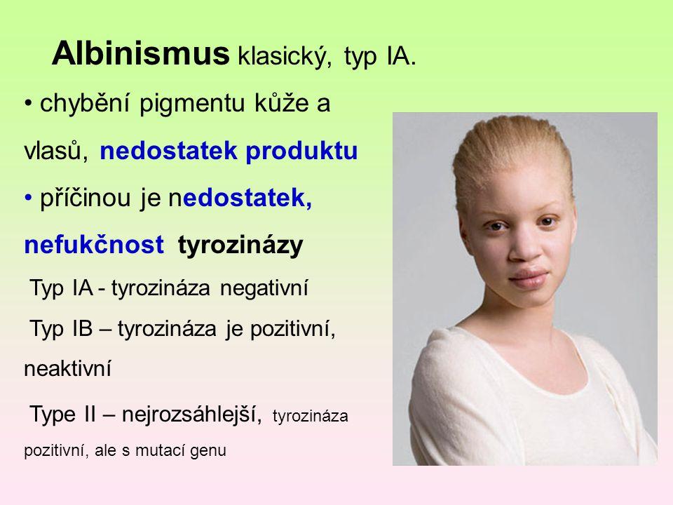 Albinismus klasický, typ IA. chybění pigmentu kůže a vlasů, nedostatek produktu příčinou je nedostatek, nefukčnost tyrozinázy Typ IA - tyrozináza nega