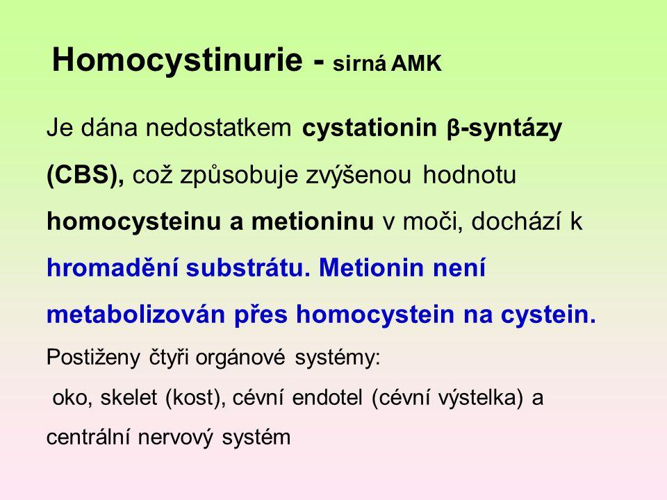 Homocystinurie - sirná AMK Je dána nedostatkem cystationin β -syntázy (CBS), což způsobuje zvýšenou hodnotu homocysteinu a metioninu v moči, dochází k