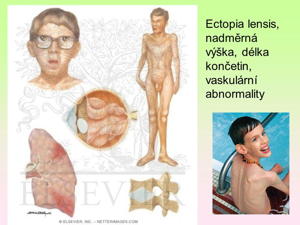 Ectopia lensis, nadměrná výška, délka končetin, vaskulární abnormality