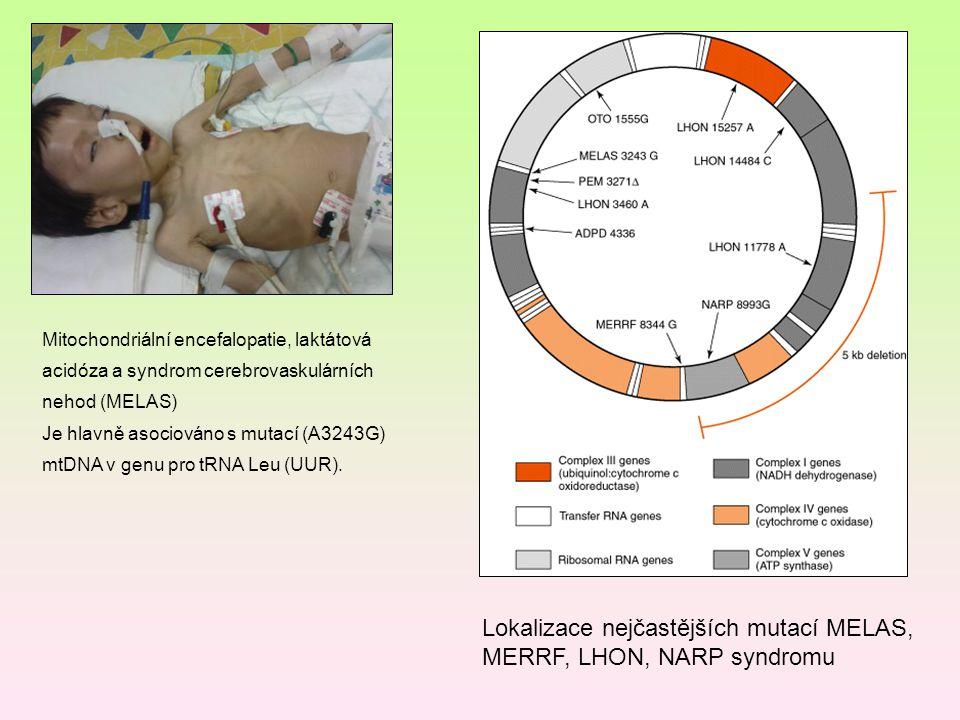 Mitochondriální encefalopatie, laktátová acidóza a syndrom cerebrovaskulárních nehod (MELAS) Je hlavně asociováno s mutací (A3243G) mtDNA v genu pro t