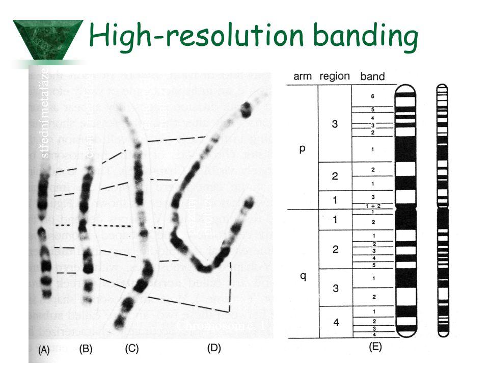 High-resolution banding Chromosom č. 1 střední metafázečasná metafáze těsně před metafází pozdní profáze