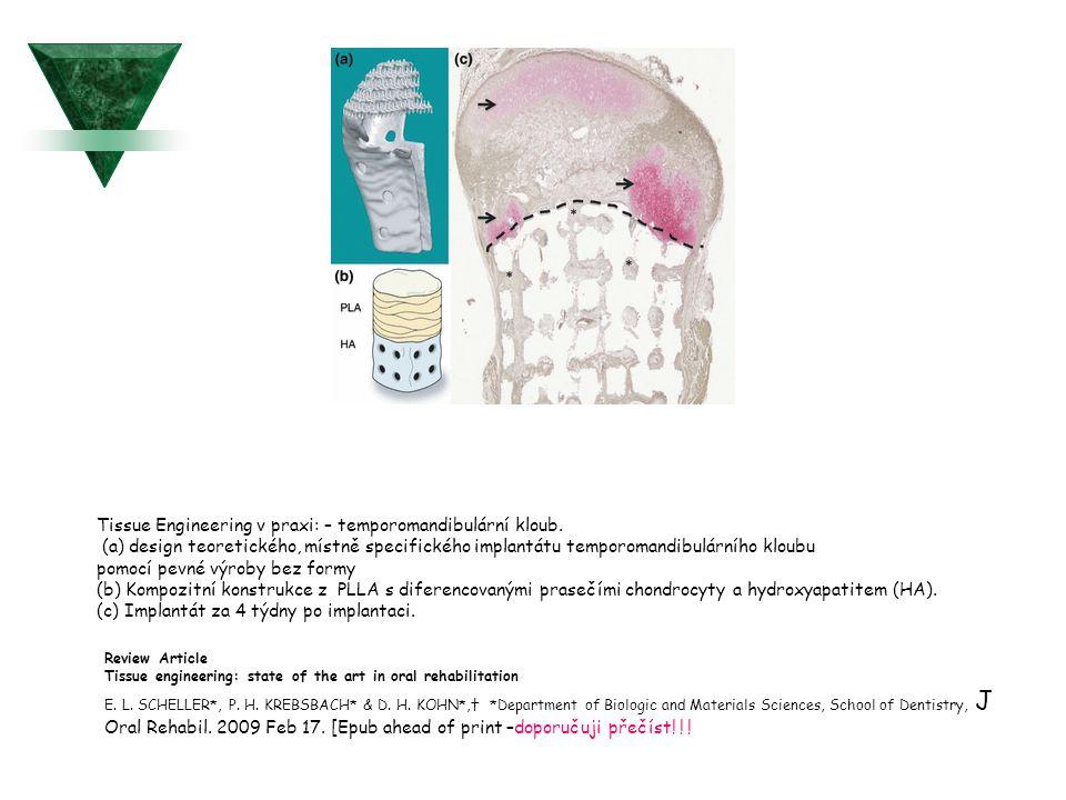 Tissue Engineering v praxi: – temporomandibulární kloub. (a) design teoretického, místně specifického implantátu temporomandibulárního kloubu pomocí p
