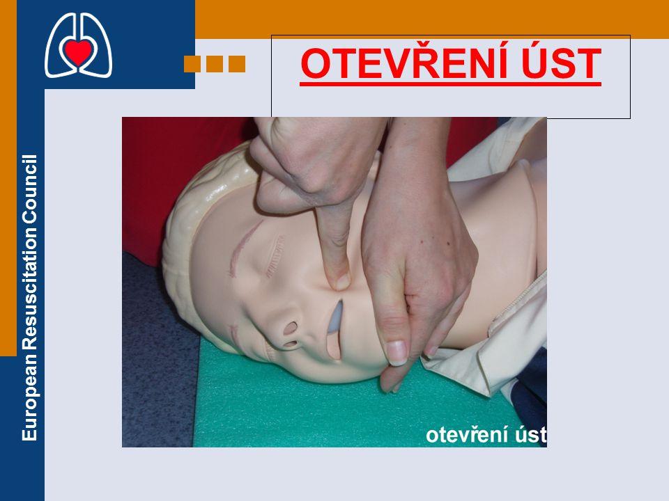 European Resuscitation Council OTEVŘENÍ ÚST