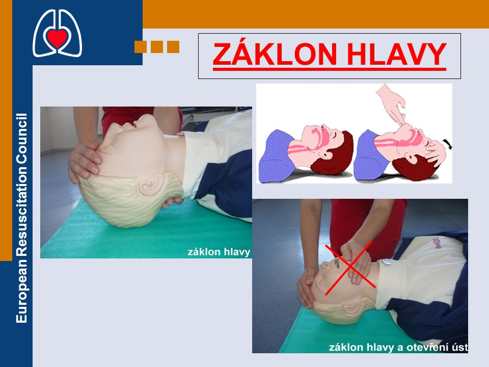 European Resuscitation Council ZÁKLON HLAVY