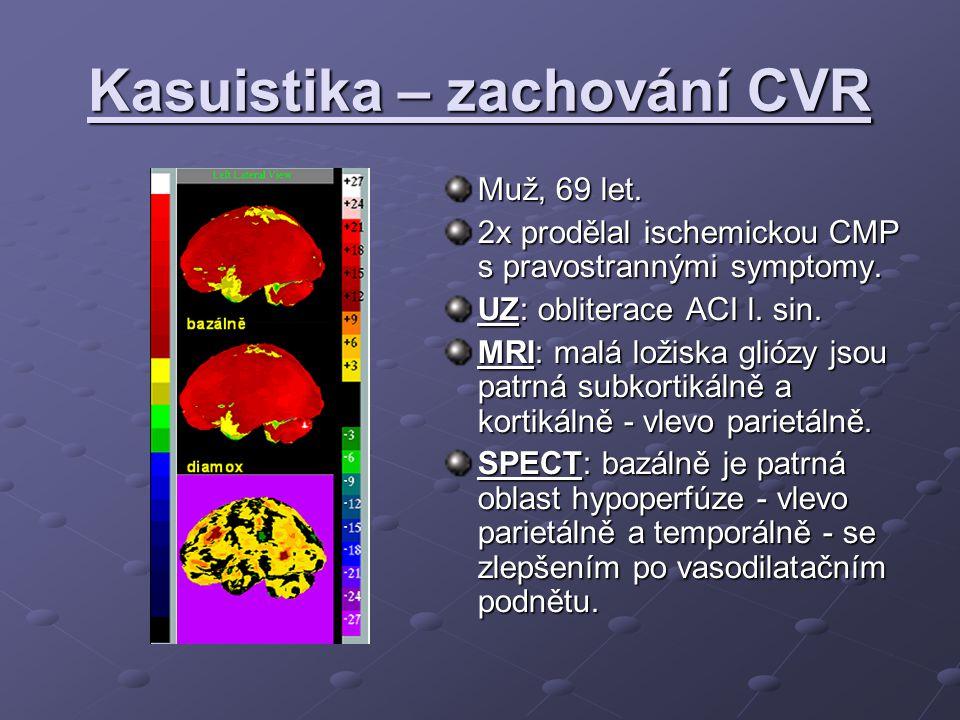 Kasuistika – zachování CVR Muž, 69 let. 2x prodělal ischemickou CMP s pravostrannými symptomy.