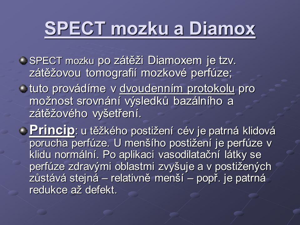 SPECT mozku a Diamox SPECT mozku po zátěži Diamoxem je tzv.