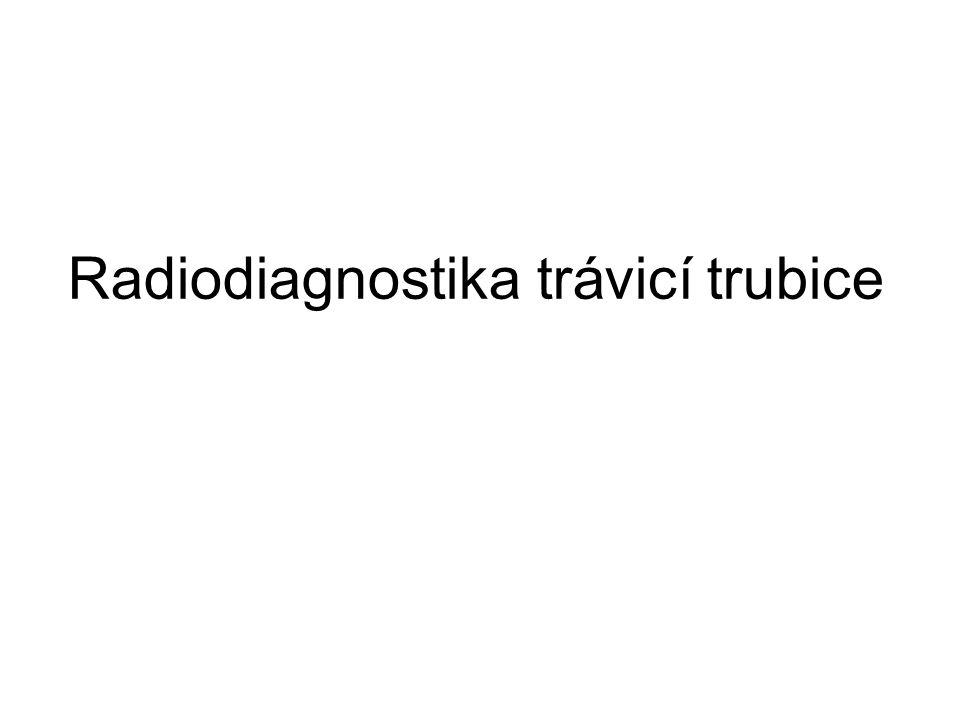 RTG žaludku zcela obsolentní vyšetření éra endoskopie monokontrastní vyšetření – baryová směs dvoukontrastní vyšetření - kontrastní látka (baryum) + distenze plynem (vzduch, CO2)