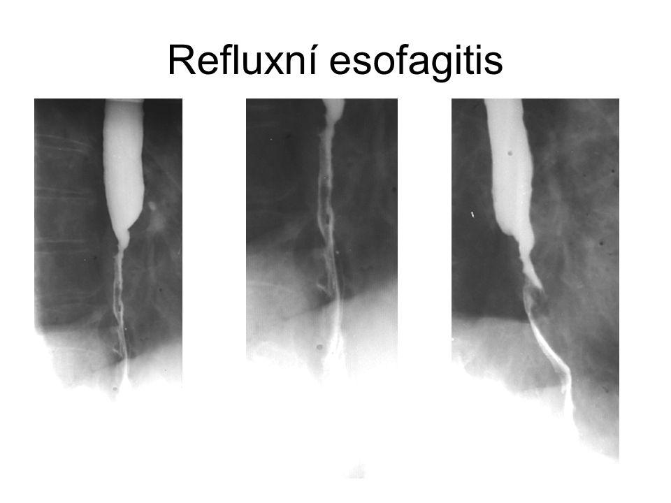 Refluxní esofagitis