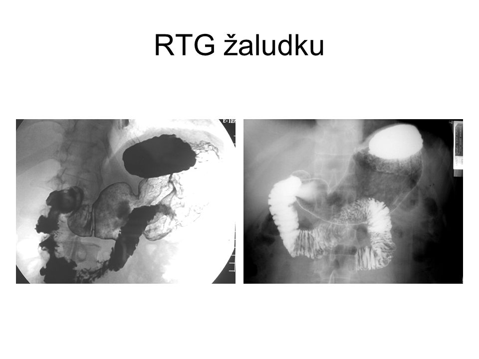 RTG žaludku