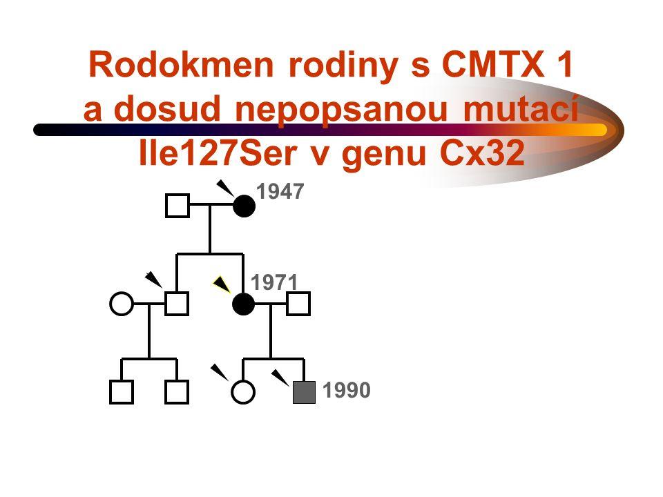 Rodokmen rodiny s CMTX 1 a dosud nepopsanou mutací Ile127Ser v genu Cx32 1947 1971 1990