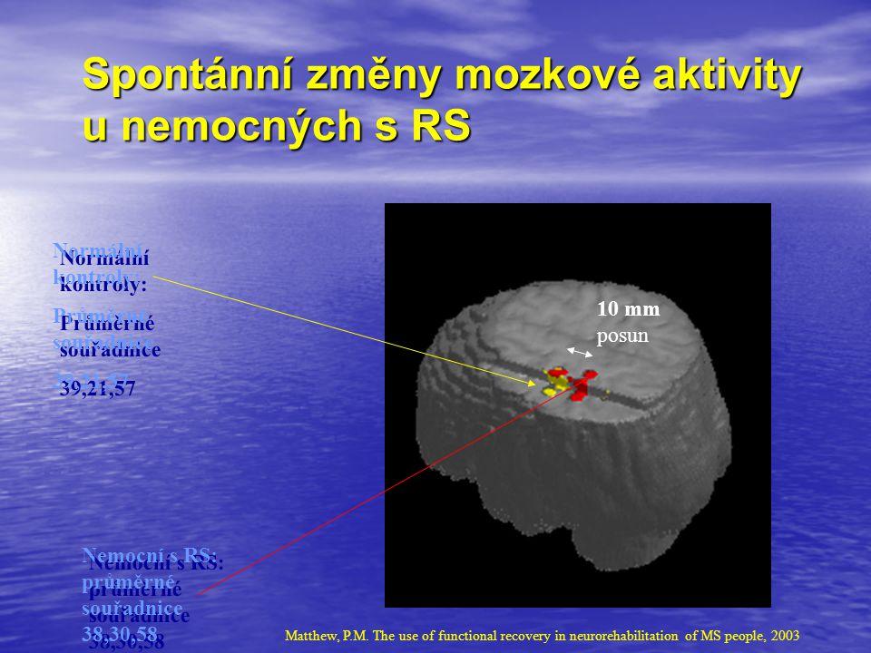 Spontánní změny mozkové aktivity u nemocných s RS Normální kontroly: Průměrné souřadnice 39,21,57 Normální kontroly: Průměrné souřadnice 39,21,57 Nemo