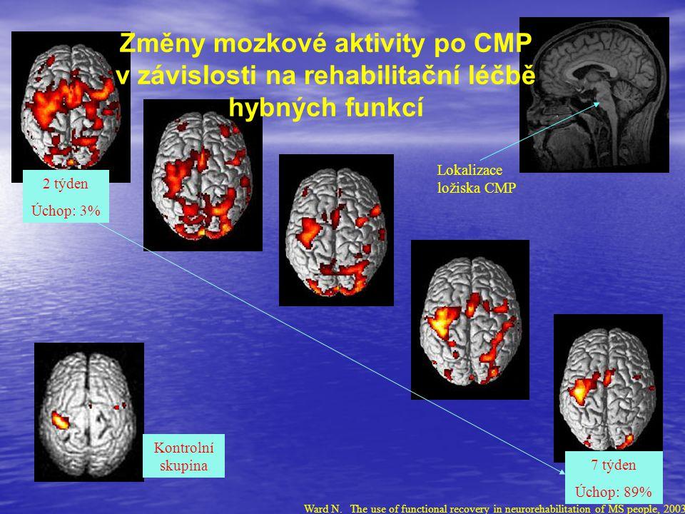 2 týden Úchop: 3% 7 týden Úchop: 89% Lokalizace ložiska CMP Kontrolní skupina Změny mozkové aktivity po CMP v závislosti na rehabilitační léčbě hybnýc