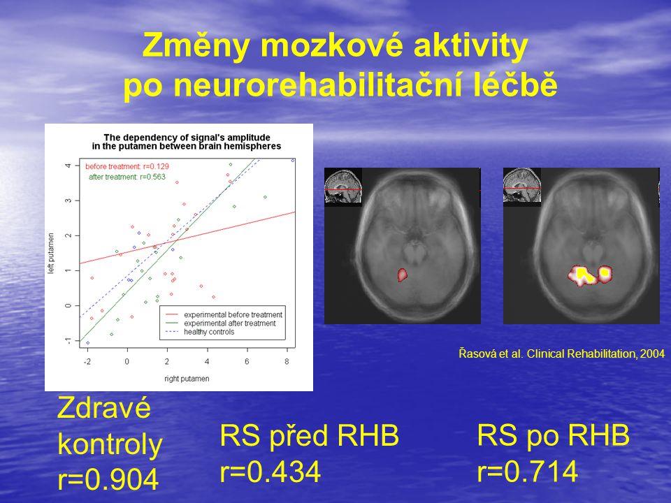 Změny mozkové aktivity po neurorehabilitační léčbě RS před RHB r=0.434 RS po RHB r=0.714 Zdravé kontroly r=0.904 Řasová et al. Clinical Rehabilitation