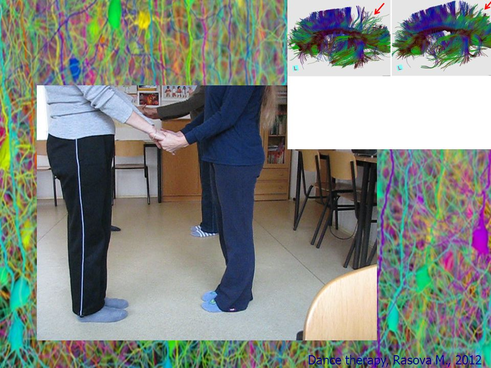 Dance therapy, Rasova M., 2012 training the motor functions happens cortical reorganization of motor neuron networks