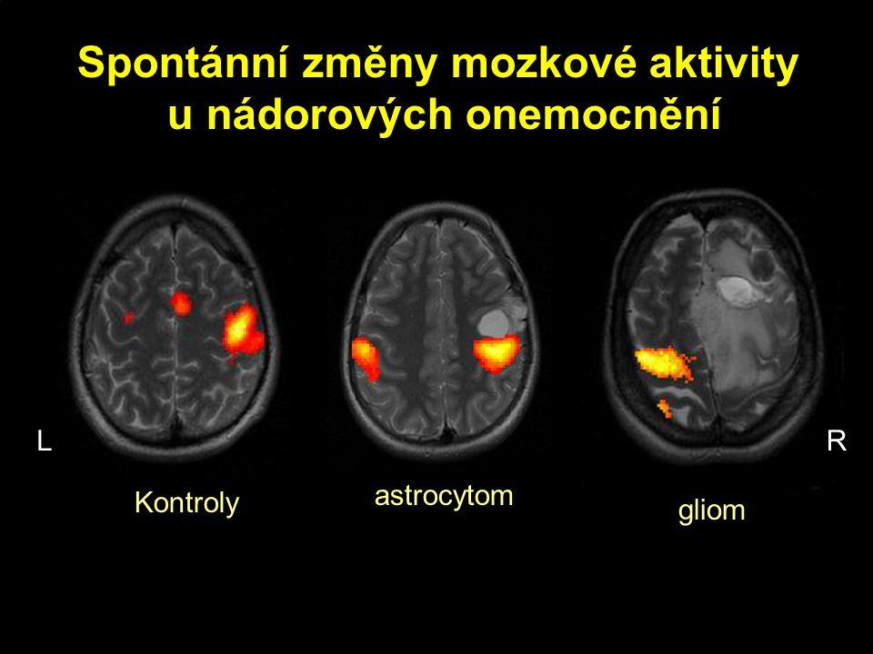 Spontánní změny mozkové aktivity u nádorových onemocnění Kontroly astrocytom gliom LR