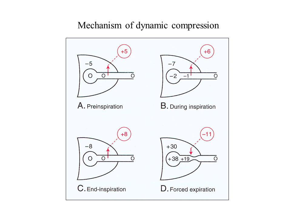 Mechanism of dynamic compression