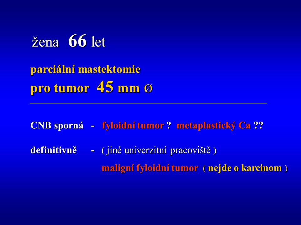 žena 66 let parciální mastektomie pro tumor 45 mm Ø CNB sporná - fyloidní tumor .