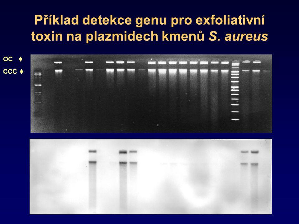 Příklad detekce genu pro exfoliativní toxin na plazmidech kmenů S. aureus OC  CCC 