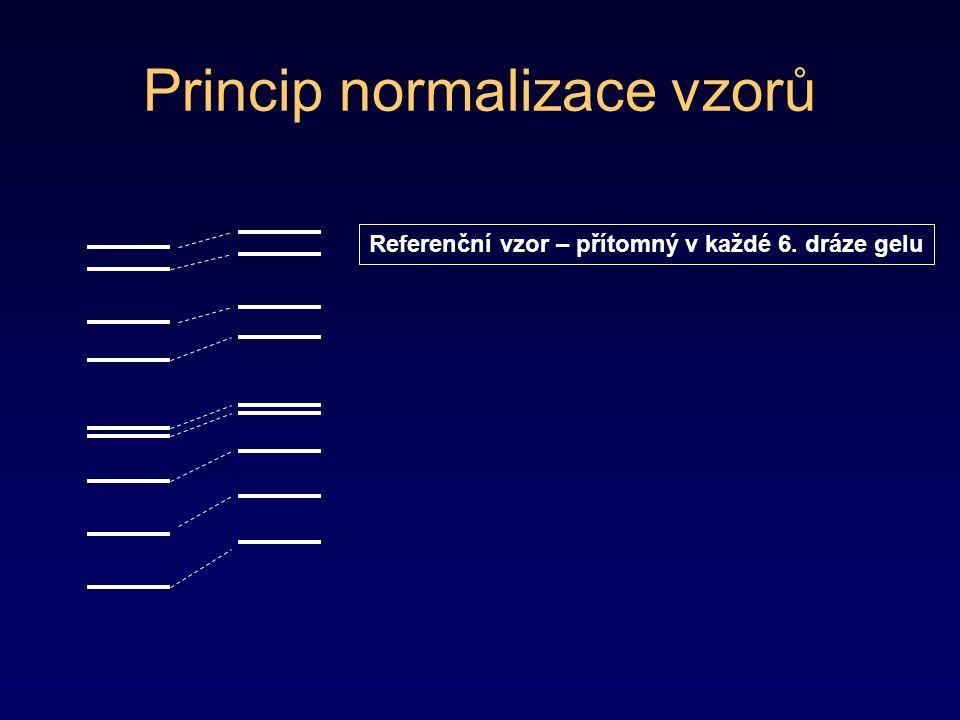 Princip normalizace vzorů Referenční vzor – přítomný v každé 6. dráze gelu