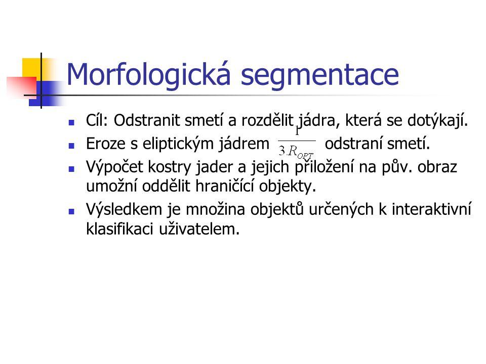 Morfologická segmentace Cíl: Odstranit smetí a rozdělit jádra, která se dotýkají.