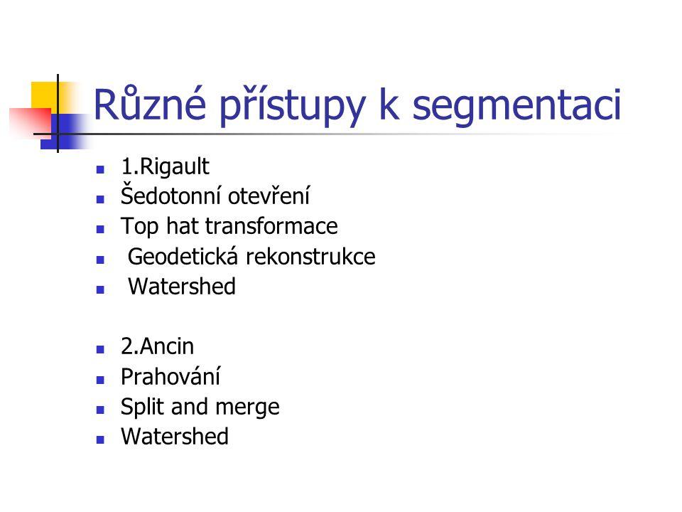 Různé přístupy k segmentaci 1.Rigault Šedotonní otevření Top hat transformace Geodetická rekonstrukce Watershed 2.Ancin Prahování Split and merge Watershed