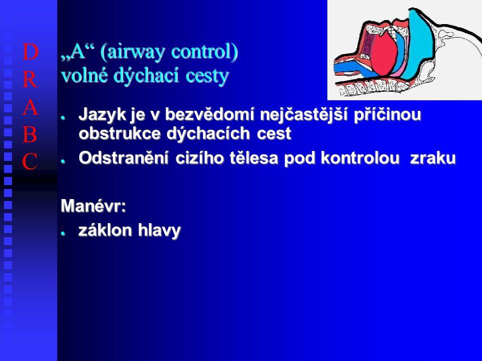 """""""A (airway control) volné dýchací cesty ● Jazyk je v bezvědomí nejčastější příčinou obstrukce dýchacích cest ● Odstranění cizího tělesa pod kontrolou zraku Manévr: ● záklon hlavy DRABCDRABC"""