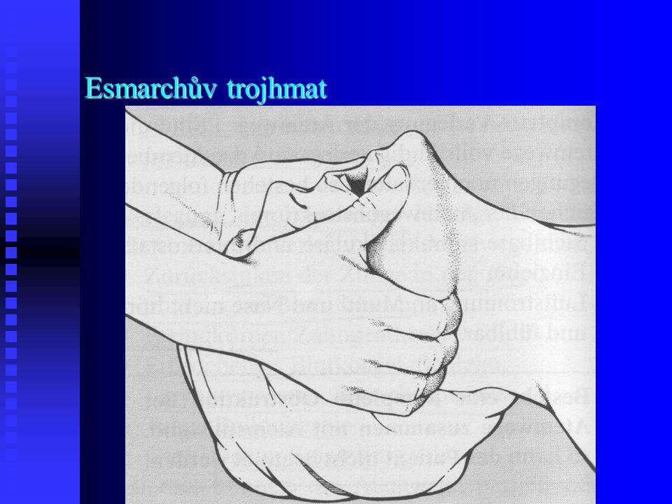Esmarchův trojhmat