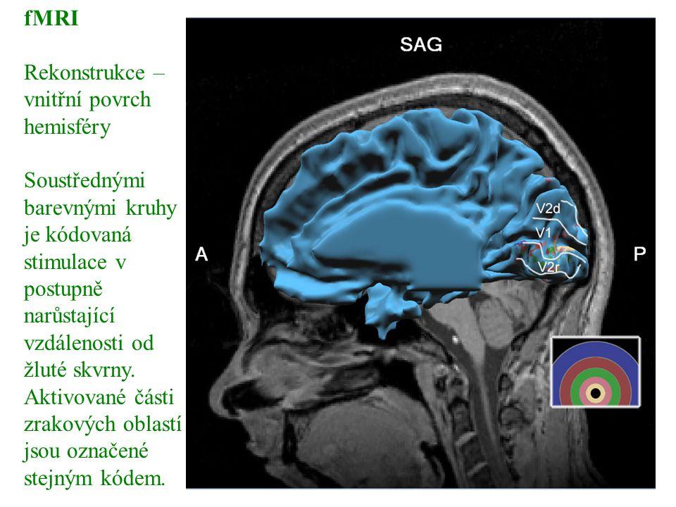 fMRI Rekonstrukce – vnitřní povrch hemisféry Soustřednými barevnými kruhy je kódovaná stimulace v postupně narůstající vzdálenosti od žluté skvrny. Ak