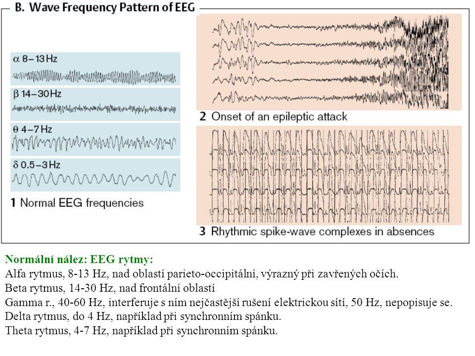 EEG atlas B Normální nález: EEG rytmy: Alfa rytmus, 8-13 Hz, nad oblastí parieto-occipitální, výrazný při zavřených očích. Beta rytmus, 14-30 Hz, nad