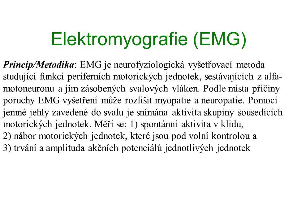 Elektromyografie (EMG) Princip/Metodika: EMG je neurofyziologická vyšetřovací metoda studující funkci periferních motorických jednotek, sestávajících