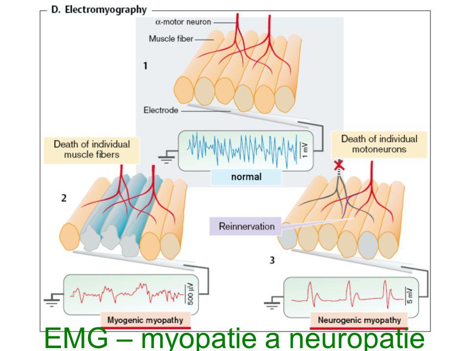 EMG – myopatie a neuropatie