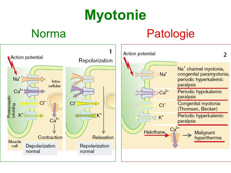 Myotonie NormaPatologie