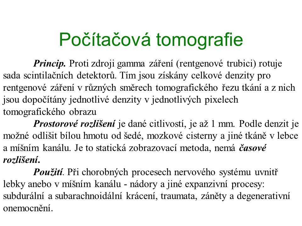 Počítačová tomografie Princip.