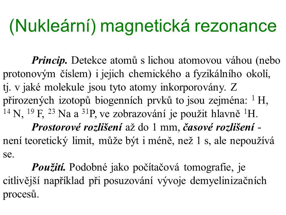 (Nukleární) magnetická rezonance Princip. Detekce atomů s lichou atomovou váhou (nebo protonovým číslem) i jejich chemického a fyzikálního okolí, tj.