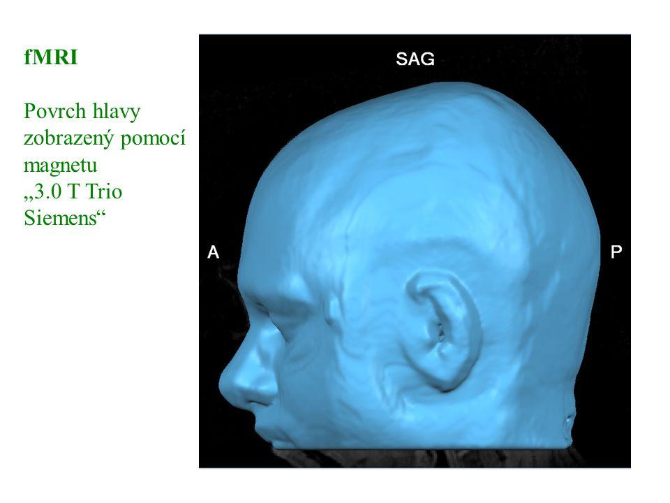 "fMRI Povrch hlavy zobrazený pomocí magnetu ""3.0 T Trio Siemens"" fMRI 1"