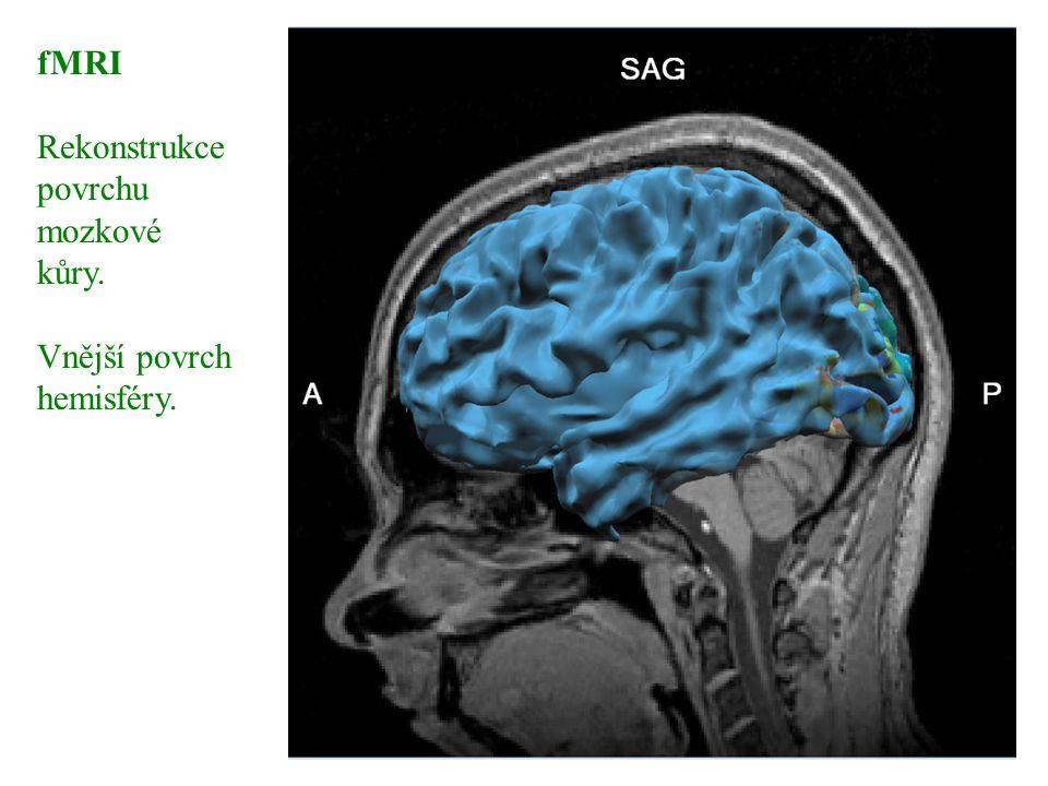 fMRI Rekonstrukce – vnitřní povrch hemisféry Soustřednými barevnými kruhy je kódovaná stimulace v postupně narůstající vzdálenosti od žluté skvrny.