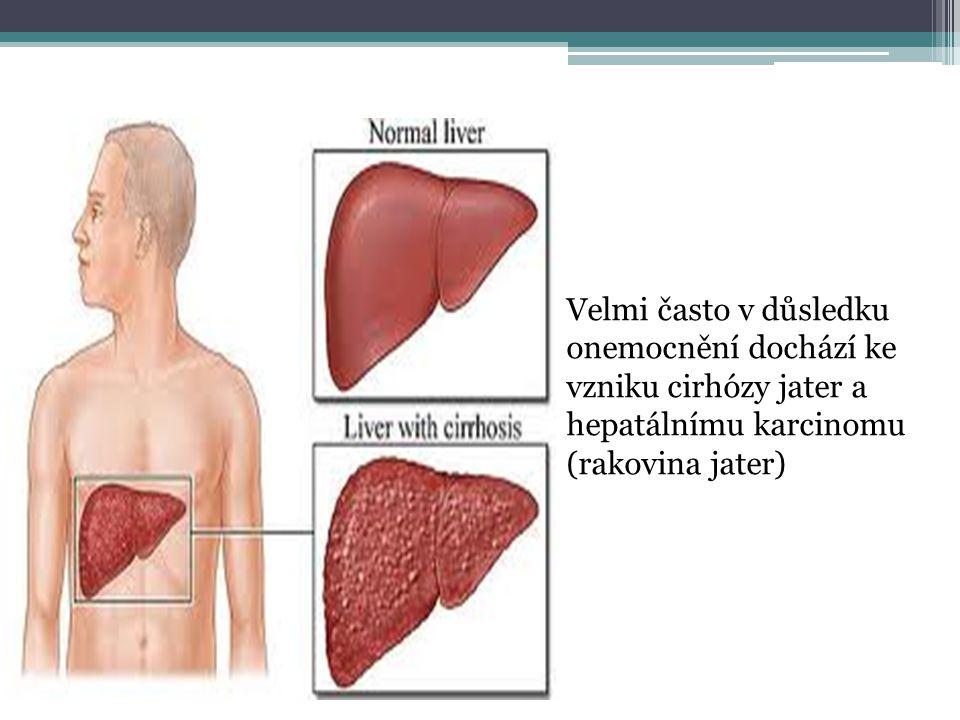 zejména chřipkové gastrointestinální kloubní, kožní, nervové