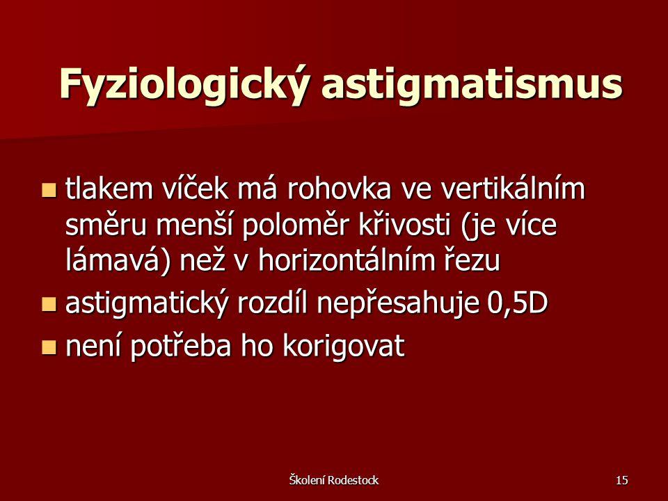 Školení Rodestock15 Fyziologický astigmatismus tlakem víček má rohovka ve vertikálním směru menší poloměr křivosti (je více lámavá) než v horizontální