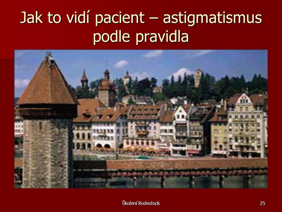 Školení Rodestock25 Jak to vidí pacient – astigmatismus podle pravidla