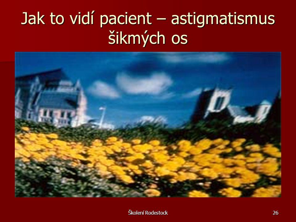 Školení Rodestock26 Jak to vidí pacient – astigmatismus šikmých os